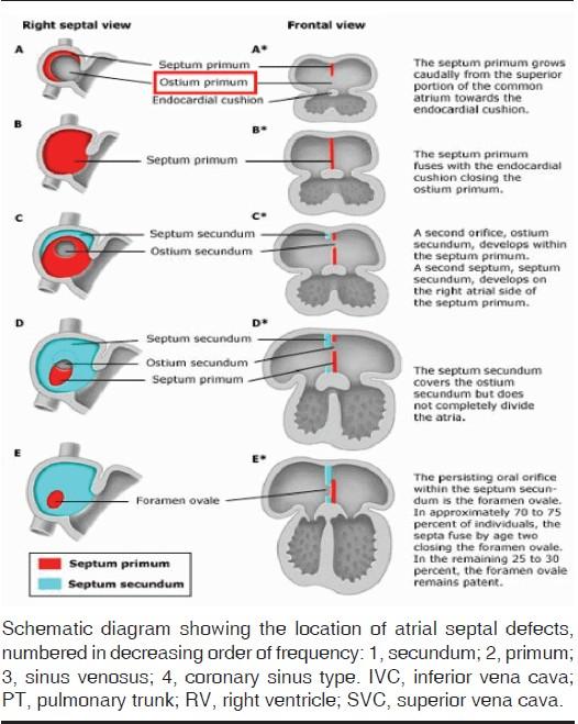 Solved. adult atrial defect in septal help you?