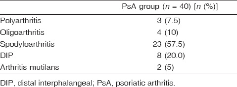 Table 2: Distribution of the psoriatic arthritis patients regarding Moll and Wright criteria