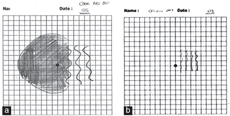 Resurrection of the amsler chart in macular diseases nassar mk
