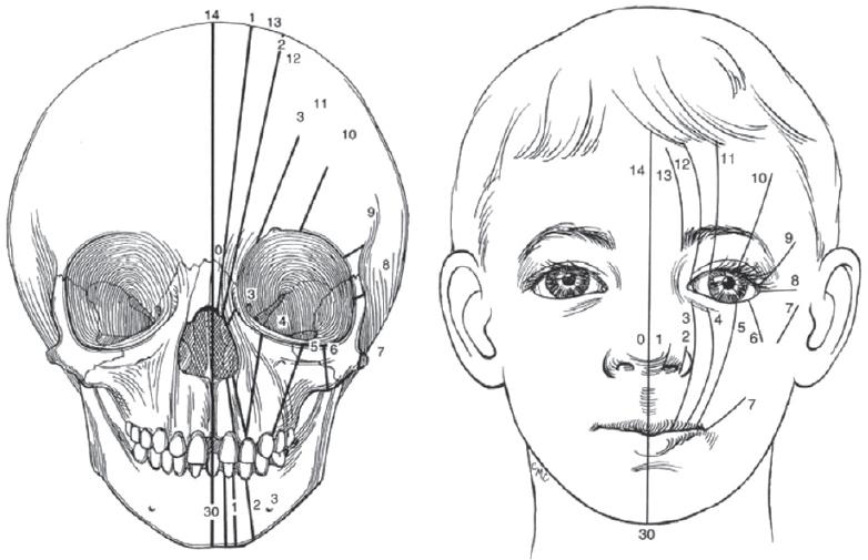 Hendidura facial transversal completa bilateral