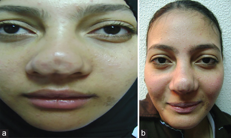 Patterns and management of congenital nasal clefts Ghareeb
