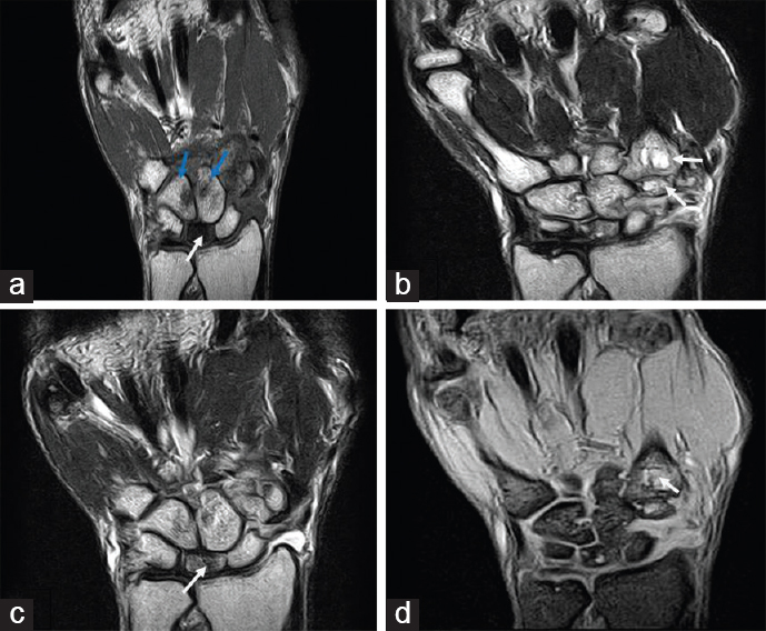 Role Of Mri In Evaluation Of Painful Wrist Joint El Kholy Mr Maaly