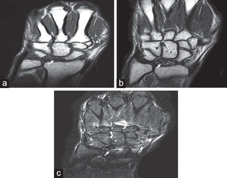 Role of MRI in evaluation of painful wrist joint El-Kholy MR, Maaly ...