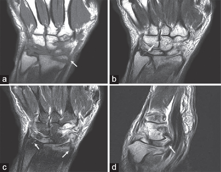 Role of MRI in evaluation of painful wrist joint El-Kholy MR, Maaly
