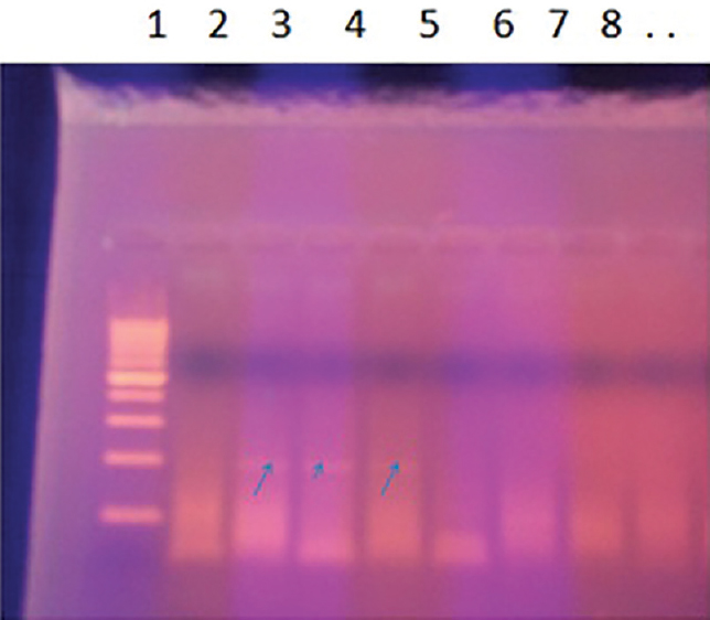 Figure 1: Agaros gel electrophoretic profi le of the nested PCR products. Arrows point to positive parvovirus B19 viral DNA cases in lanes 2, 3, and 4, whereas lanes 1 and 5– 8 show negative cases using 100 bp ladder.