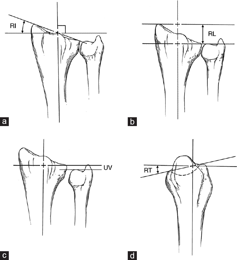 Comparison Between Results Of Management Of Recent Intra Articular