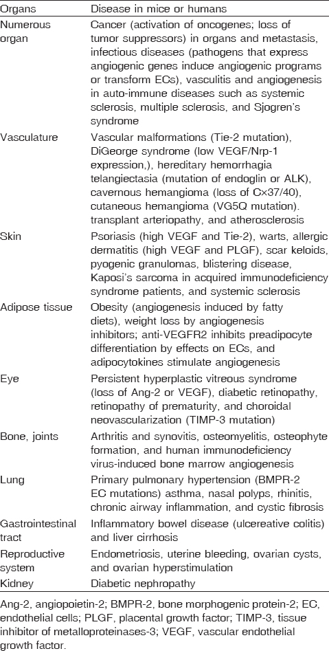 Table 1 Diseases characterized or caused by abnormal or excessive angiogenesis <sup>[18]</sup>