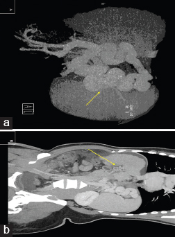 Figure 5: a) Computed tomography (CT) portography image showing the dilated perigatric collaterals (arrow). (b) CT coronal image showing portal vein thrombosis recanalized by collaterals (arrow).