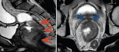 Figure 1: Male patient aged 34 years with adenocarcinoma grade II, staged T4 N1. MRI of (a) sagittal T2 and (b) axial T2 revealed rectal neoplastic mural thickening involving the mid and lower rectum (red arrowhead in a). It is seen extending into the mesorectal fascia anteriorly (blue arrowhead in b).