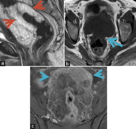Figure 5: A 46-year-old female patient with mucinous adenocarcinoma, staged T3 N0. MRI of. (a) sagittal T2, (b and c) axial. T1, and axial T1 postcontrast fat saturation showing irregular mural tumefaction starting with cranial extension. (red arrowhead in a). The lesion involved the full thickness of the rectum together with loss of serosal outline definition and anterior extension of the tumefaction into the mesorectum fat planes and reaching as far as its anterior limit. (blue arrow in b). The nearby ileal loops appear amalgamated with loss of the mesenteric fat planes. (blue arrow in c).