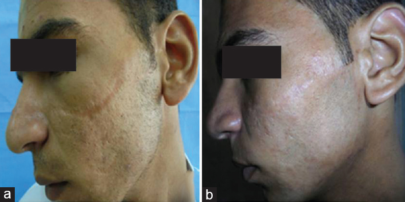 Improving esthetic outcome of facial scars by fat grafting Ghareeb F