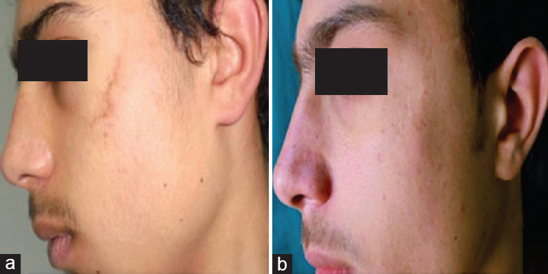 Improving esthetic outcome of facial scars by fat grafting