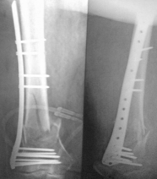 Figure� 4: Immediate postoperative radiograph.