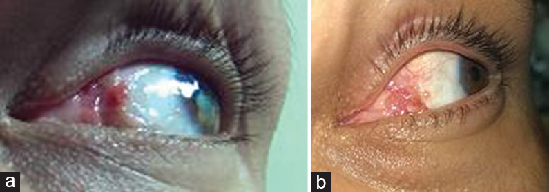 Figure� 7: Left bulbar pyogenic granuloma in a 40-year-old male patient following pterygium excision. (a) Before treatment and (b) 1 week after topical steroids eye drops.