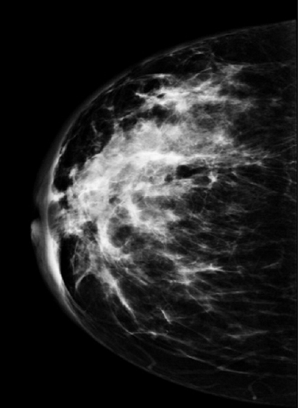Role of contrast-enhanced digital mammography in evaluation of