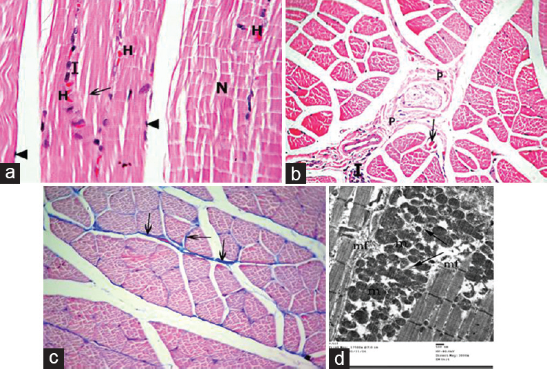 the striations in skeletal muscle fibers are attributable to