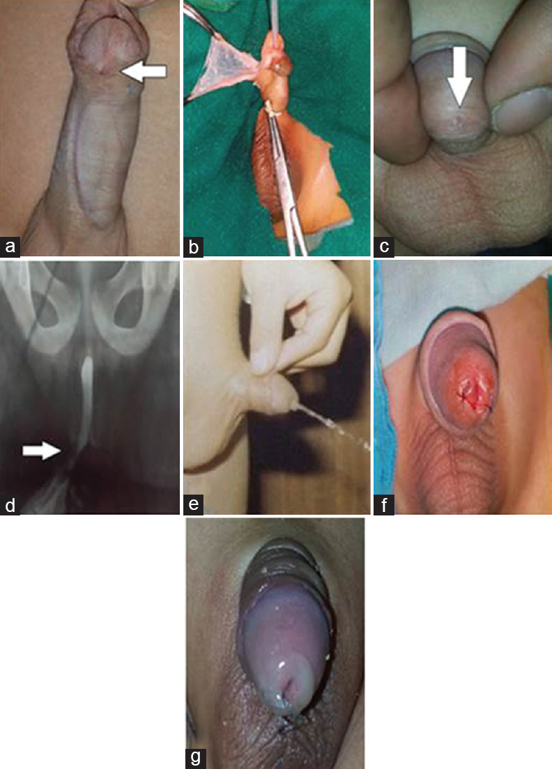 Figure� 3: A 4-year-old boy with coronal hypospadias operated by Snodgrass surgical technique: (a) Preoperative; (b) Intraoperative; (c) postoperative; (d) postoperative urethrogram showing urethral stricture; (e) Postoperative voiding. (narrow urinary stream); (f) meatomy was performed; (g): postmeatomy final appearance.