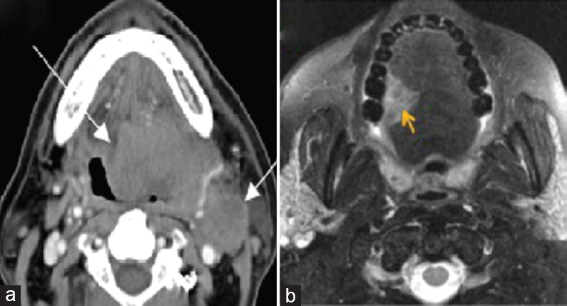 Figure� 7: (a) Axial contrast-enhanced computed tomography image for a 50-year-old male patient showing a large left-side tongue base carcinoma. Note the extension across the midline (long arrow) and the ipsilateral enlarged jugulodigastric node (short arrow). (b) T2-weighted image for a 65-year-old male patient demonstrates a well-defined and hyperintense tumor that does not cross the lingual septum.