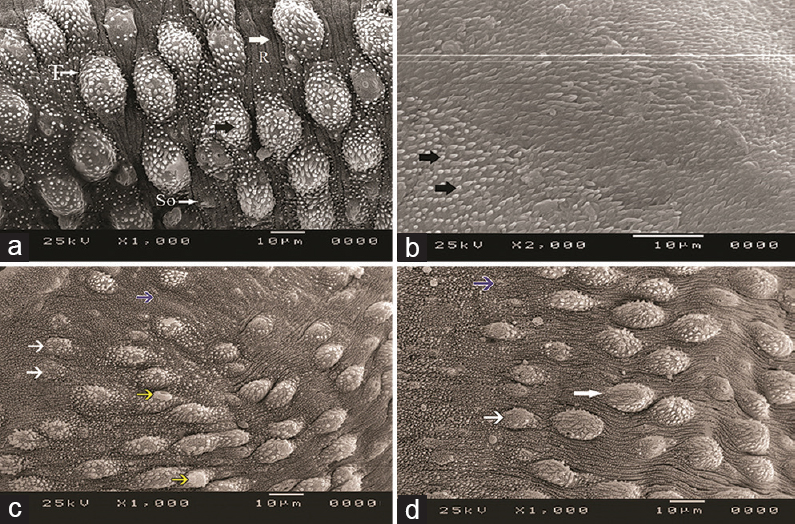 Figure 3: Scanning �electron �micrograph �of�(a) �adult �<i>Schistosoma� (S.) mansoni</i> male �worm �tegument �of �control �positive �group �showing �normal �tubercles�(t), �spines�(black �arrow), �sensory �organelles�(So), �and �intertubercular �ridges�(r)�(×1000);�(b) �<i>S. � mansoni</i> �female �worm �tegument �of �control �positive �group �showing �normal �tegument �and �intact �spines�(black �arrows)�(×2000);�(c) �praziquantel-treated �group �showing �distorted �tubercles�(white �arrow) �and �loss �of �intertubercular �ridges�(blue �arrow) �with �surface �blebbing�(yellow �arrows)�(×1000); �(d) �mefloquine-treated �group �showing �distortion �of �tubercles, �loss �of �spines�(white �arrows), �and �loss �of �intertubercular �ridges�(blue �arrow)�(×1000).