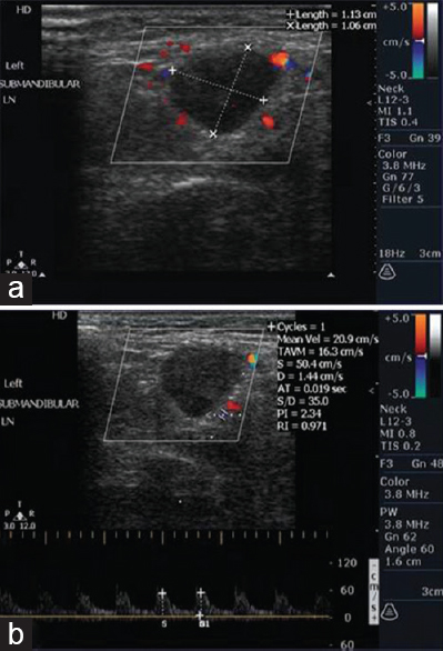 Role Of Color Doppler Ultrasonography In Differentiating Benign