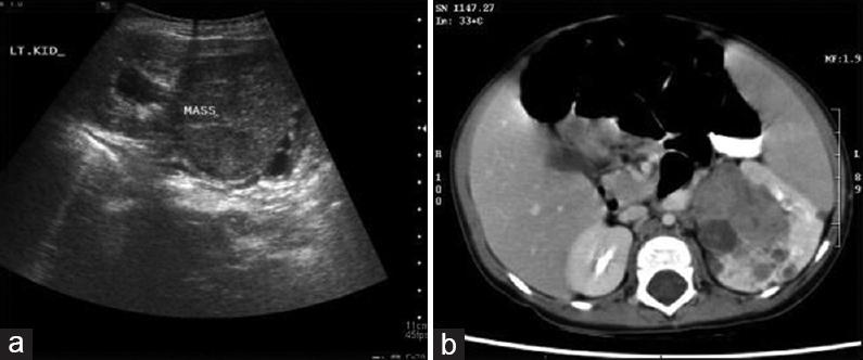 A Comparative Study Of Ultrasonography And Computed Tomography In Diagnosing Renal Masses El Mekkawy Ese Abdella Tf El Batt Ma Menoufia Med J
