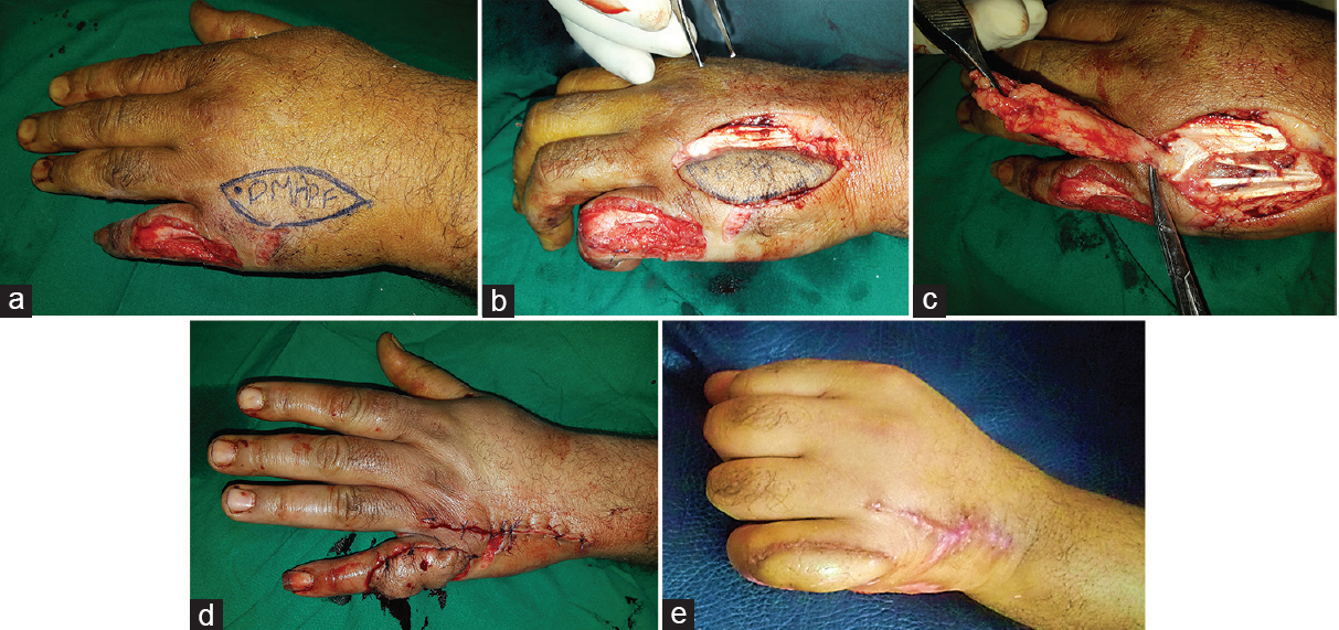 Figure 3: Operative steps: (a) marking and designing the flap over the fourth DMAP for coverage of post-traumatic skin and soft-tissue defect with exposed extensor tendon on the dorsum of the left little finger of a male patient of 34 years old. (b) Incision of the lateral border of the flap  first to identify the correct plane for flap elevation. (c) Complete flap elevation based solely on the DMAP. (d) Flap inset and anchoring to the defect with primary closure of the donor area and good vascularity seen. (e) Flap 2 months later with good esthetic and functional outcome. DMAP, dorsal metacarpal artery perforator.