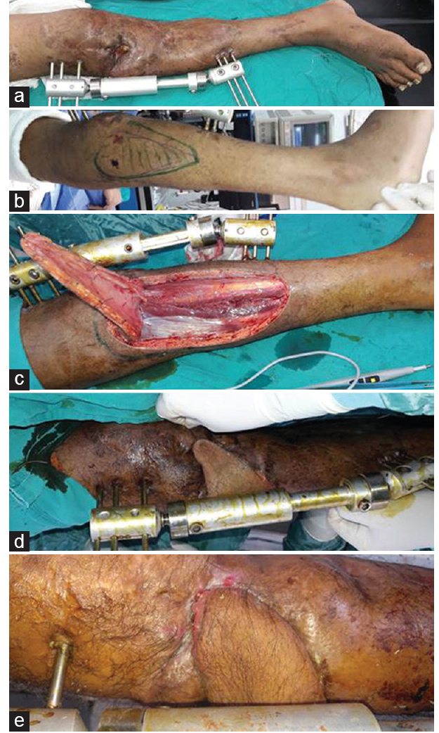 Figure 3: Illustration of a case of medial sural artery perforator flap. (a) The defect. (b) Flap design. (c) Flap elevation. (d) Flap inset. (e) Flap postoperatively. (a) The defect is chronic ulcer over tibia of the right leg. (b) Flap design with marking perforators (c) flap is elevated with fascia sutured to it, preventing shearing movement. (d) Flap inset (e) postoperative view showing satisfactory flap coverage of ulcer defect.