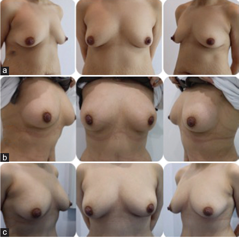 Figure 2: A 26-year-old patient underwent liposuction of abdomen, flanks, and back with fat transfer to the buttock and two sessions of breast lipofilling. First 220 cm3 of fat was injected for each breast and second 100 cm3 fat for upper pole. (a) Baseline, (b) 6 months postoperatively, and (c) 12 months postoperatively.