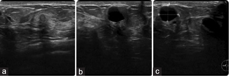 Figure 3: Breast ultrasound for the patient (Fig. 2): (a) baseline; (b) breast nodule at 6 months postoperatively; and (c) breast nodule increased in size at 12 months postoperatively.