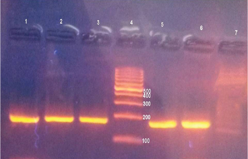 Figure 1: A representative agarose gel picture for p53 codon 72 proline allele (171 bp) in lanes 1, 2, 3, 5, 6. Lane 4: DNA ladder.