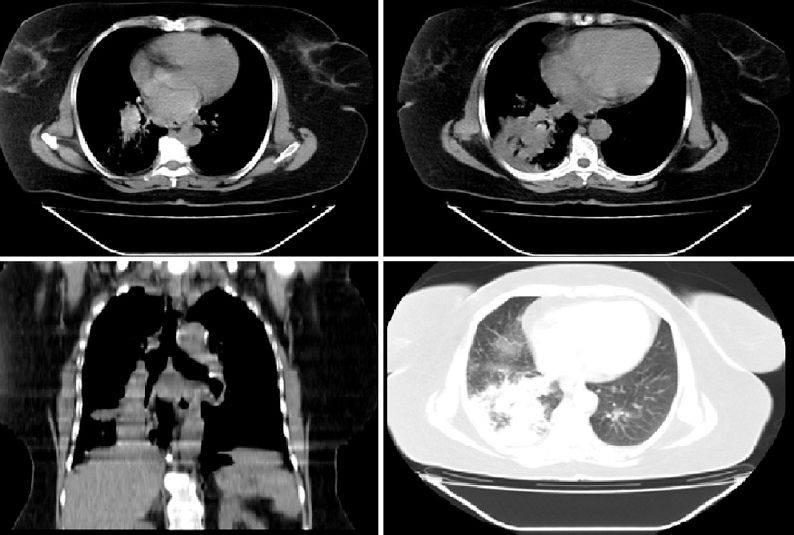 Figure 4: Multidetector computed tomography of the chest without contrast revealed (bronchogenic carcinoma) right lower lobe lesion causing narrowing right lower lobe bronchus and distal consolidation patch. Enlarged paratracheal and subcarinal lymph nodes, small pulmonary nodules.