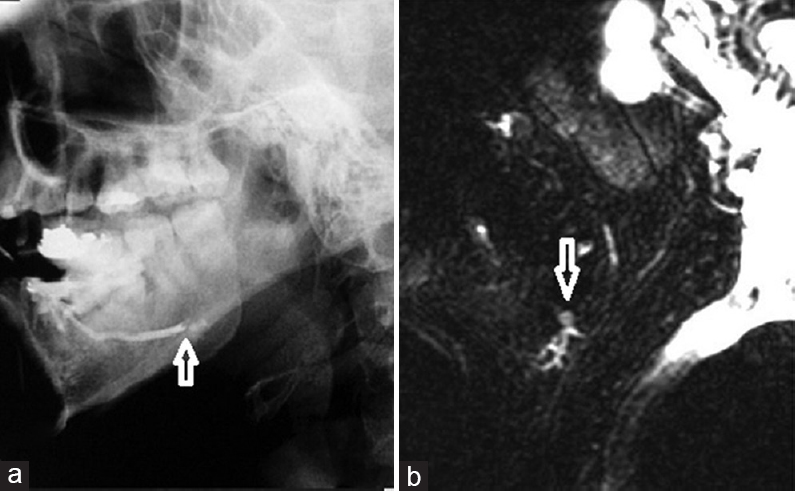Figure 4: Sialolith in the proximal main duct of right submandibular gland. (a) Right lateral view of conventional sialogram showing cessation of contrast in the proximal main submandibular duct. (b) Sagittal MR sialogram of the right submandibular gland reveals the mild dilatation with beading of the intraglandular branches with the stone (arrow) in the proximal part of the right submandibular duct <sup>[17]</sup>.