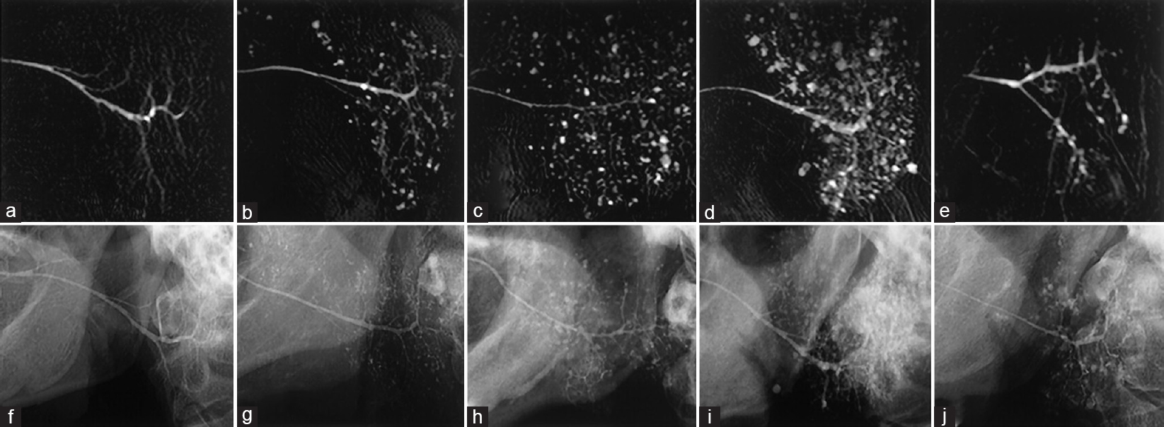 Figure 6: (a–j) MR sialograms (a–e) and conventional sialograms (f–j) of the parotid glands in patients with xerostomia with or without Sjögren's syndrome: grade 0 (a and f), grade 1 (b and g), grade 2 (c and h), grade 3 (d and i), and grade 4 (e and j). Note apparent differences in sialographic features at grade 4 (e vs. j) <sup>[31]</sup>.